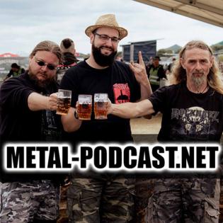 MetalNet